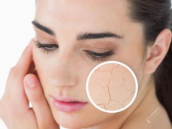 Процедура  «Уход за  сухой, чувствительной, раздраженной кожей от Holy Land»