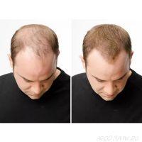 Загуститель для волос Fully