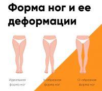 Ремни для выпрямления ног